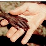 62 ricchi al mondo hanno più risorse dei 3,5 miliardi di poveri!